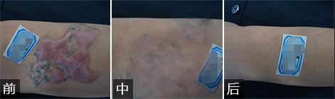 手术切除后极易形成大小不等的疤痕疙瘩,使疤痕更加恶化.