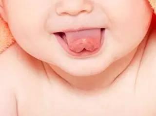 宝宝舌苔颜色有点黑