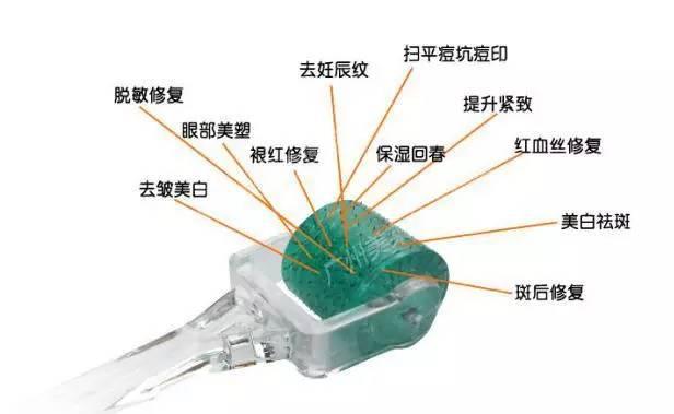 微针是什么原理_手表拨针原理