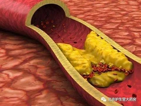 身体五种迹象或是高血脂