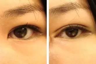 二:单眼皮变双眼皮图片