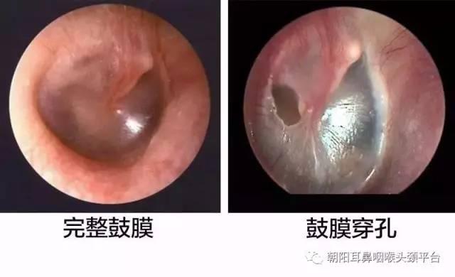耳膜破了!要聋了吗?
