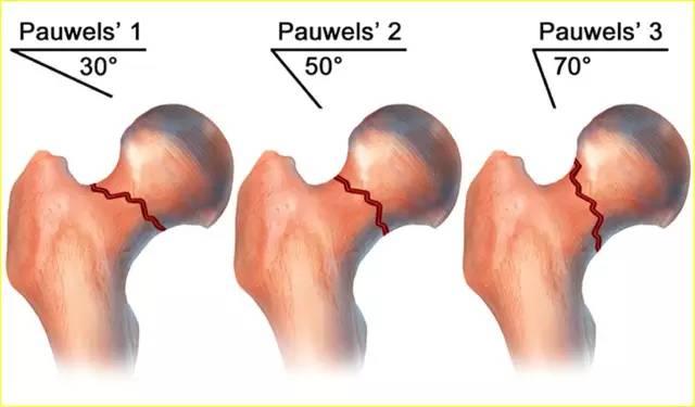 手把手教程 股骨颈骨折内固定选择策略图片