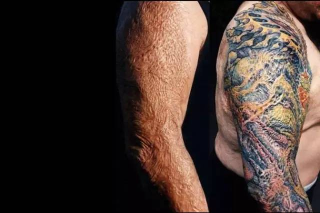 Tattoo Over Skin Graft