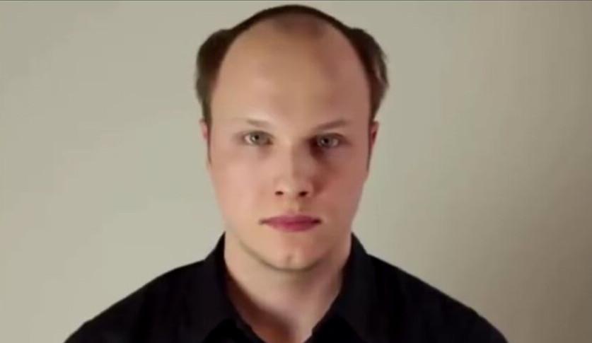 剃掉头顶余发后,开始植发.