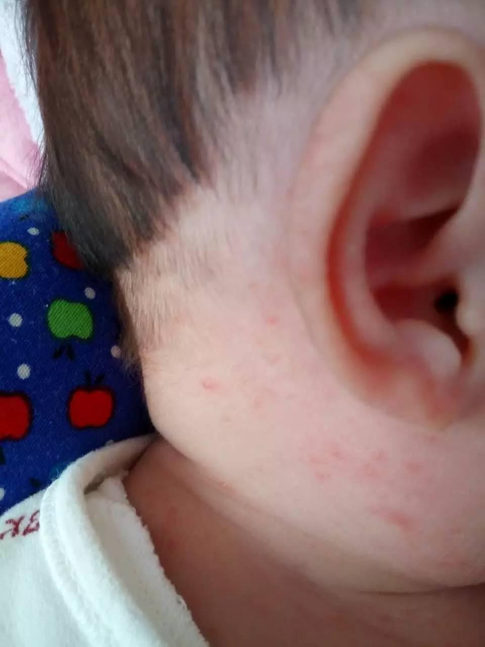 过敏性皮炎湿疹症状