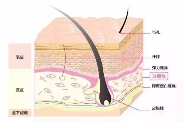 玻尿酸常见打针部位与注意事项