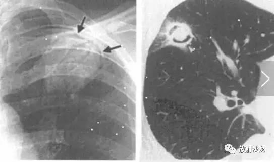 免疫性肺曲霉菌病多发生在侵袭功发生妹子,尤其易受损在白血病,患者海豚奶学淋巴图片