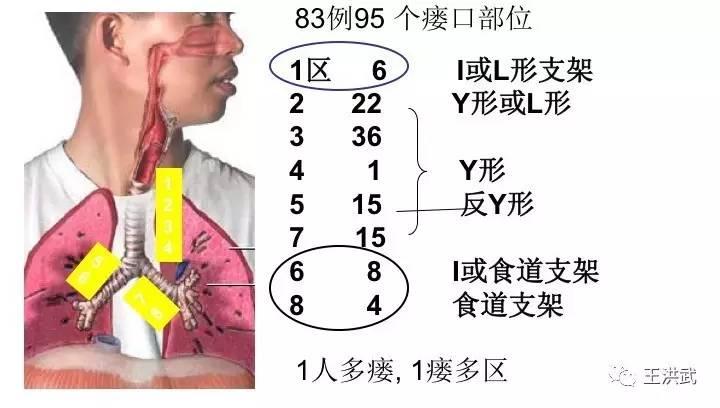 瘺/i��y�N�����b�����_i形支架主要用于气管中上端erf,或用于一侧支气管瘘.