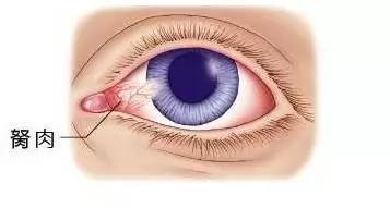 或有轻微异物感; 眼红:胬肉如果充血会呈现红色,有红血丝,偶尔看东西图片