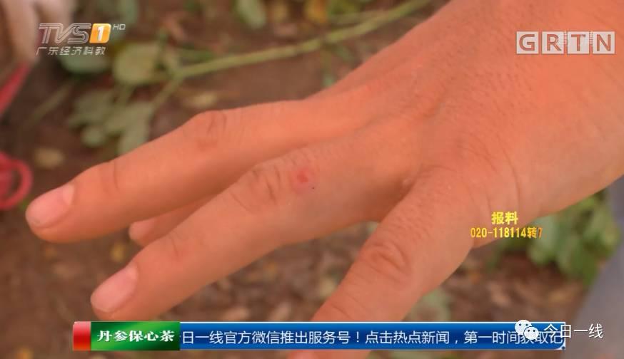也联系上了沙口镇政府 镇农业办负责人提醒 一旦被红火蚁咬伤 可在