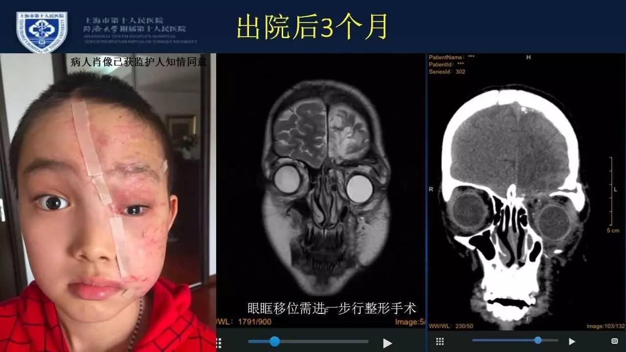 百性亚洲无码_颅脑创伤-神经重症病例周刊(第25期)丨小儿合并严重颌