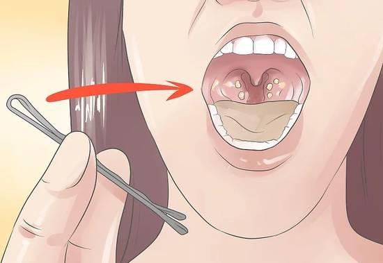 色情动漫卡通囹�a_从口腔里咳出来的黄色臭颗粒究竟是啥?