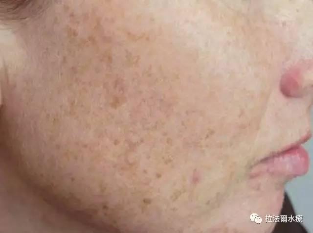 脸上长了痘痘,身体里会长什么