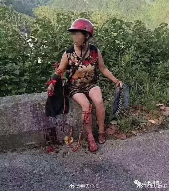 农妇遭毒蛇咬伤,怒撕毒蛇给儿做菜,毒蛇咬伤急救关键是?