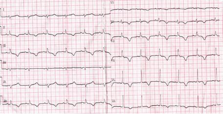 其临床表现包括右室结构和功能的异常,男性多见,可见心电图异常和室性心动过速,v1、v2导联可见epsilon波.