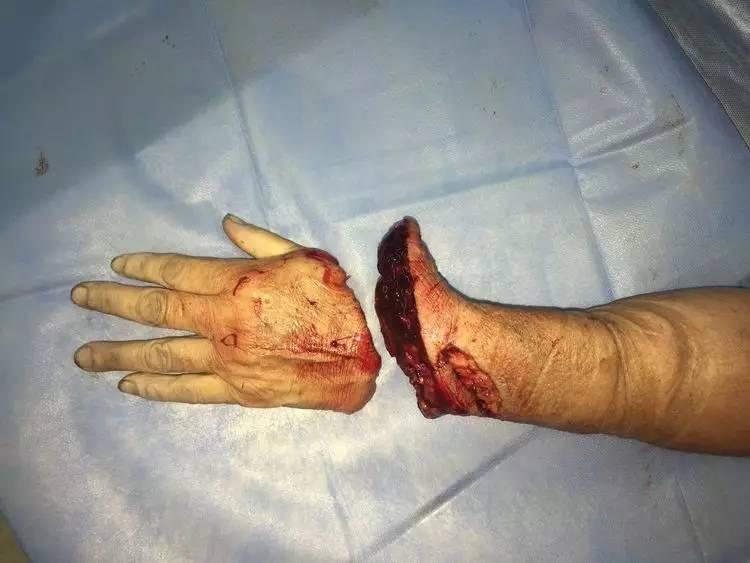病人2017年8月10号由梁山深夜转来,患者及家属心急如焚,求医心切.