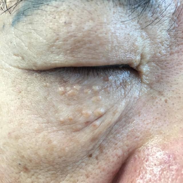扁平疣的症状_眼皮疙瘩以为是扁平疣,没想到却是这个病,不好治