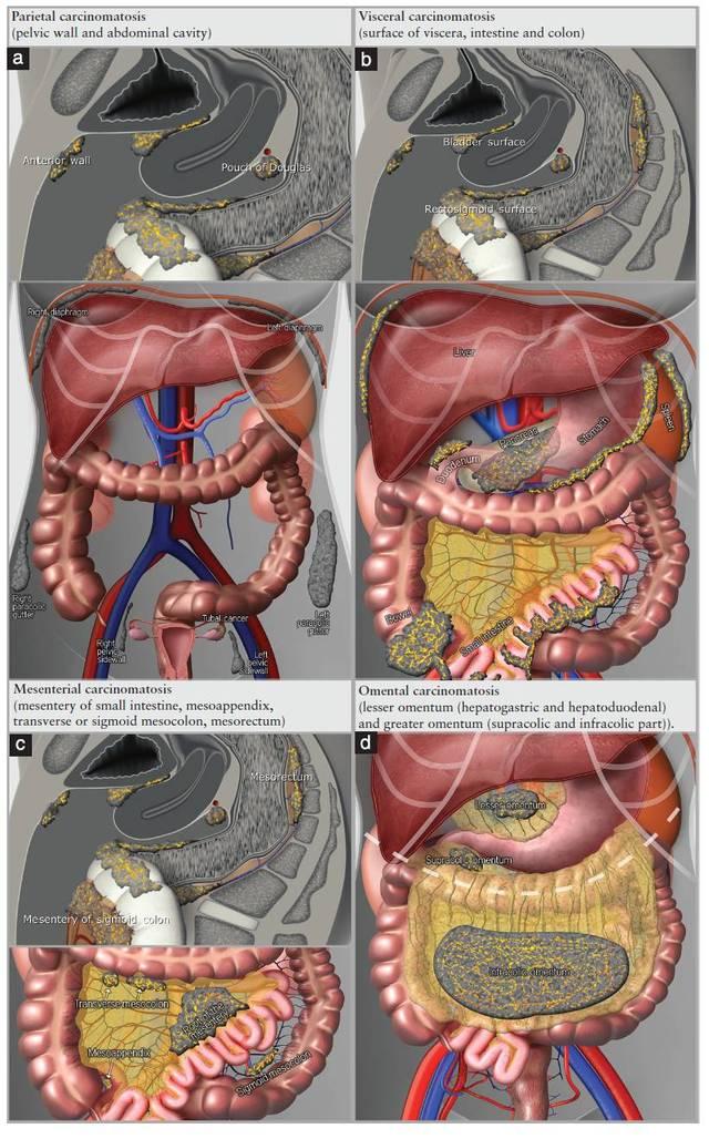 大胆漏逼艺术囹�a_腹膜癌肿播散的示意图:(a)壁层腹膜,(b)脏层腹膜,(c)肠系膜癌肿,(d)