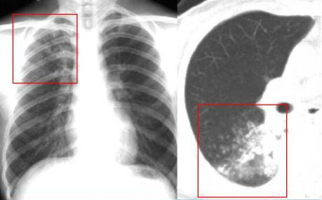 是临床上最常见的活动性,继发性肺结核.多由局灶型肺结核发展而来.