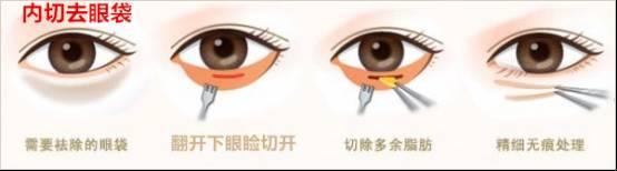 手术祛眼袋多少价钱呢
