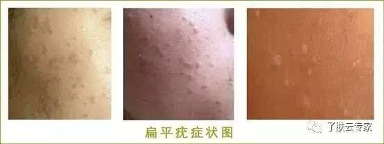 扁平疣的症状_不同时期有不同的症状,扁平疣分为早期,中期,晚期,不同时期的扁平疣