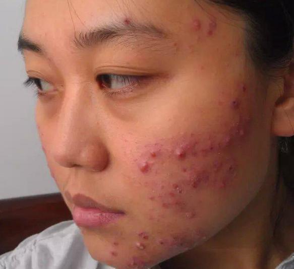 脸上的暗疮怎么去除_如何去除脸上痘痘护肤三步骤不可不知