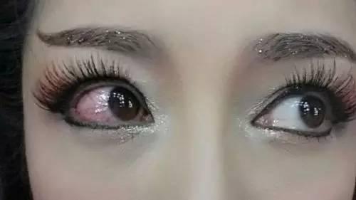 小孩子眼睛有红血丝_眼白浑浊发红-眼白红痒,眼白发红充血怎么回事,眼球体混浊,眼 ...