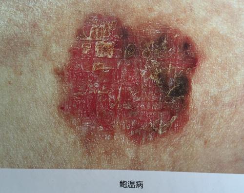 生殖器疣的原因_HPV感染可引发的另一种疾病---鲍温样丘疹病-搜狐健康