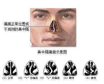 鼻中隔弯曲手术_什么是鼻中隔偏曲-搜狐健康