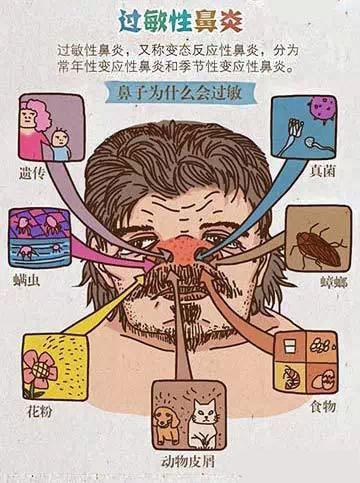 甜性涩爰_过敏性鼻炎最常见的问题
