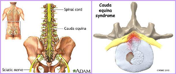 腰椎间盘突出的原因_腰椎间盘突出的形成原因及过程