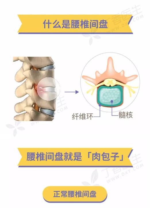 腰椎间盘突出的原因_关于腰椎间盘突出的问题,看这张图就可以了!