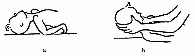露逼做爱囹�a_图3—23 矫正头后仰 a.错误方法 b.正确方法