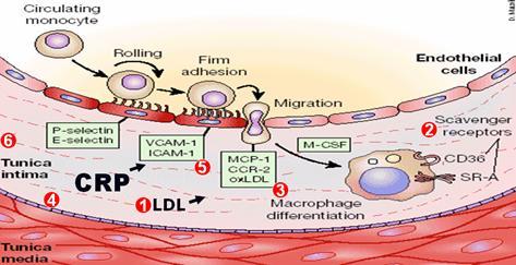 充娃大胆囹?il?.??/d_作为炎性反应的重要标志物,在组织损伤时,在细胞因子il-6等的诱导下