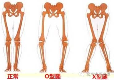 您的走路姿勢正確嗎圖片