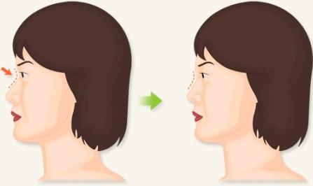 鼻�9�*yl#��+_整形说 单纯的隆鼻并不能秒变美鼻girl