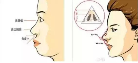 隆鼻后整体向右鼻头变形