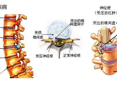 腰椎间盘突出的原因_腰椎间盘突出的主要原因和治疗方法