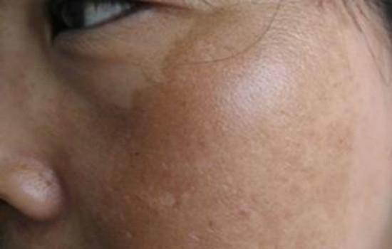 婴儿咖啡斑图片_斑的种类及图片 看图教你正确认识脸上斑种