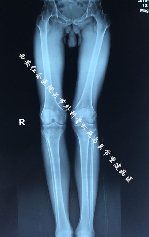 左髋关节骨性关节炎_双侧髋关节疼痛15年-搜狐健康