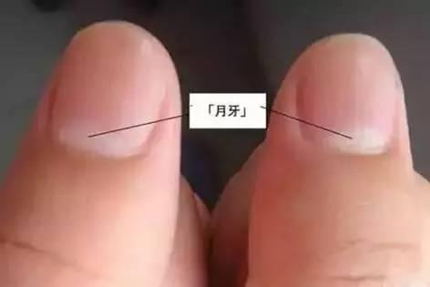 被大黑鸡吧操的嗷嗷直���9��y�+:j��i�_健康 正文  指甲发黑多为外伤挤压后的淤血堆积,如果不是外伤所致