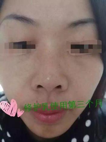 治螨虫过敏_治疗过敏性皮炎的办法-过敏性皮炎症状治疗,治过敏性皮炎的好 ...