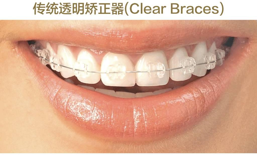 陶瓷自锁牙套_关于牙齿矫正,看这一篇就够了-搜狐健康