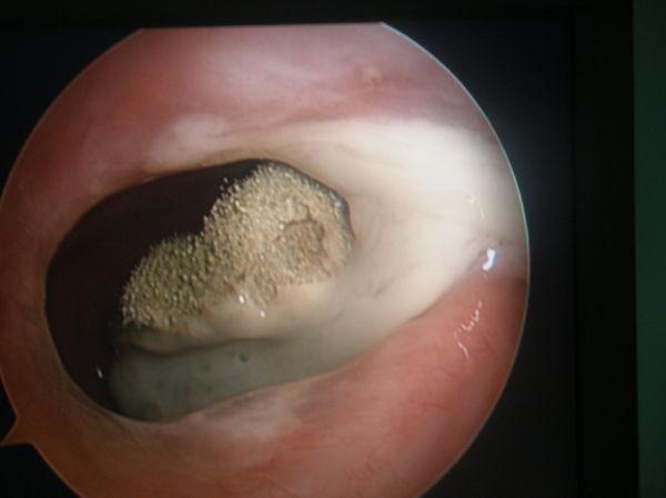 五月性辅_现代生活要警惕霉菌性上颌窦炎