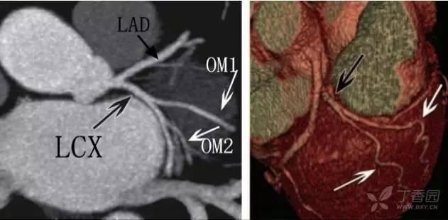 心脏血管前降支_入门必备:冠状动脉 CT 解剖及变异
