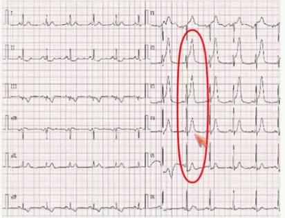 露脸囹b>K�_实用临床手册:胸痛心电图的鉴别诊断