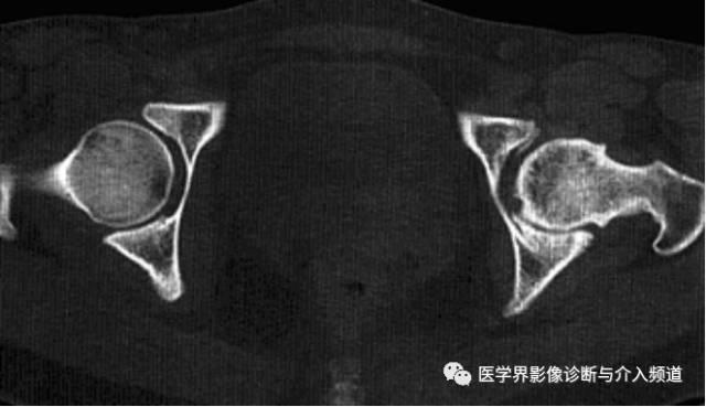 左髋关节骨性关节炎_厉害了!12种髋关节病变的影像鉴别诊断