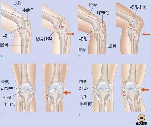 男人生殖器官应�y��aiyil��)��'����fj9k�9d�a�9�`������9f_等级i 矫正膝盖或弯曲膝盖后有轻微的疼痛 等级ii和iii 矫正膝盖或