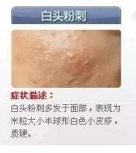 脓包型痤疮如何治疗_丘疹型痘痘没有及时治疗导致痘痘恶化成为脓包,两者并存成为丘疹脓包